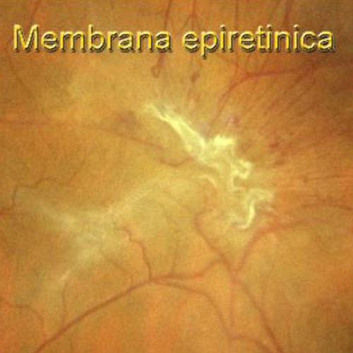 membrane-epiretiniche